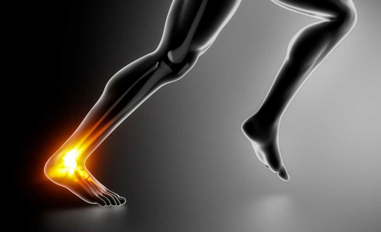 Fix-physio-sports-fix-my-achilles-injury-diagram