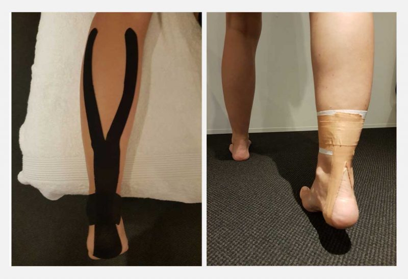 Fix-physio-sports-fix-my-achilles-injury-kinesiotape